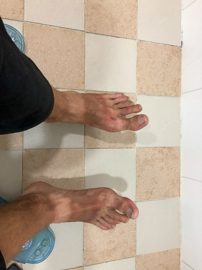 My burned feet from 8 days on the scooter.